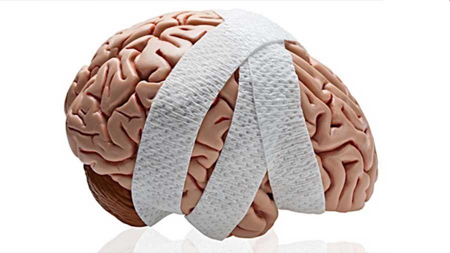 Los Mejores Abogados en Español de Lesiones Cerebrales Para Mayor Compensación en West Covina California